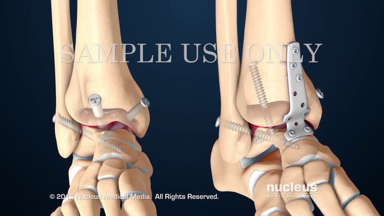 Артродезирование голеностопного сустава техника операции бандаж на коленный сустав orlett rkn 202