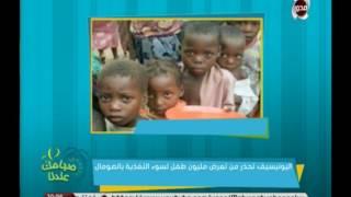 يونيسيف تحذر من سوء التغذية بين أطفال الصومال | صباحك عندنا