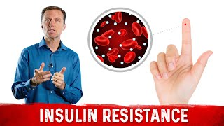 Understanding Insulin Resistance and What You Can Do About It