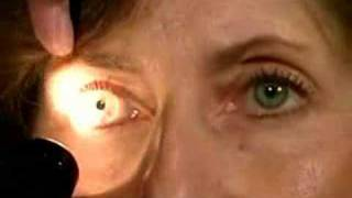 Cranial Nerves II & III - Pupillary Light Reflex 5/25