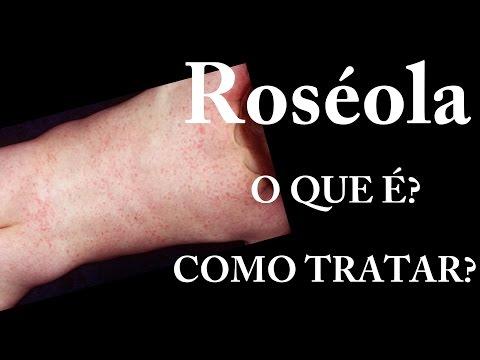Roséola - O que é? | Sintomas | Tratamento