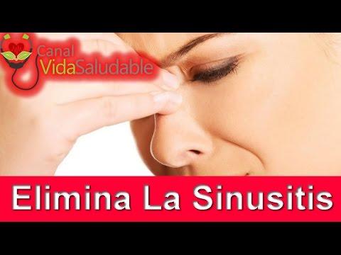 Descubre Los Remedios Naturales Más Efectivos Para Eliminar la Sinusitis