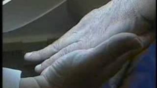 «Мы впервые наблюдали, как меланома растворилась»(Рак кожи был излечен экспериментальным методом., 2008-06-25T17:29:52.000Z)
