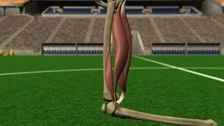 Les blessures des joueurs : les ischio-jambiers