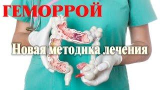 Новая методика лечения геморроя хирургическим способом