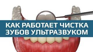 Ультразвуковая чистка зубов. Процедура проведения чистки зубов ультразвуком(Чистка зубов ультразвуком предполагает удаление зубного камня и налета при помощи ультразвукового скейле..., 2016-09-06T12:27:53.000Z)