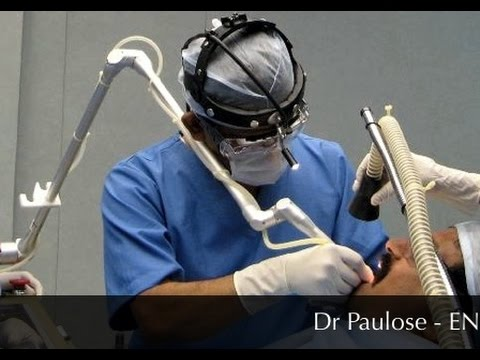Nasal Blockage And Allergic Rhinitis-Treated By Laser and Coblator Dr Paulose FRCS (ENT)