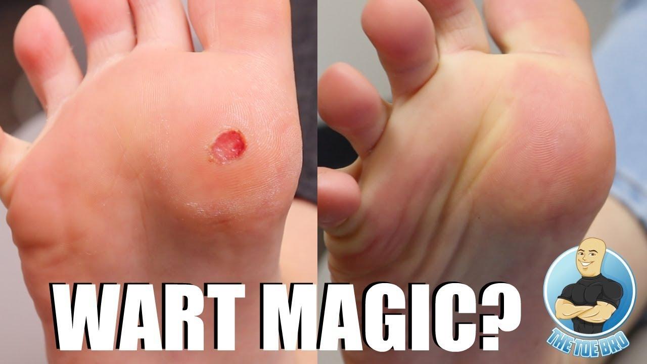 wart treatment gone wrong)