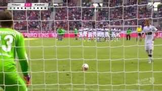 Telekom Cup 2015 - Bayern München - B. M´gladbach Elfmeterschießen