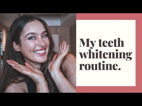 My Teeth Whitening Routine In Partnership With Spotlight Oral Care