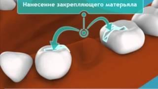 видео Микропротезирование зубов