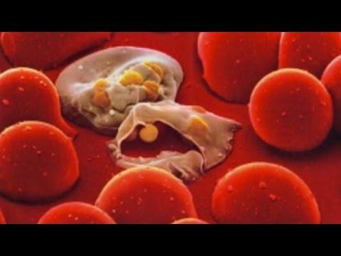 Влияние алкоголя на кровь и мозг человека