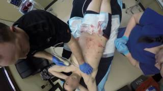 HD Body Sculpting - Six Pack Abs | BigSky Lipo