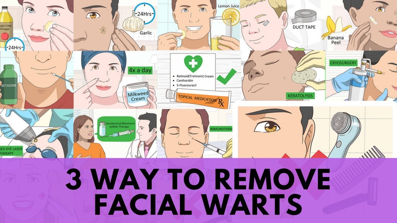 Home Remedies: 3 Way to Remove Facial Warts | KaziRa