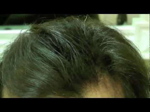 Super Soluzione per il diradamento dei capelli - YouTube VF09