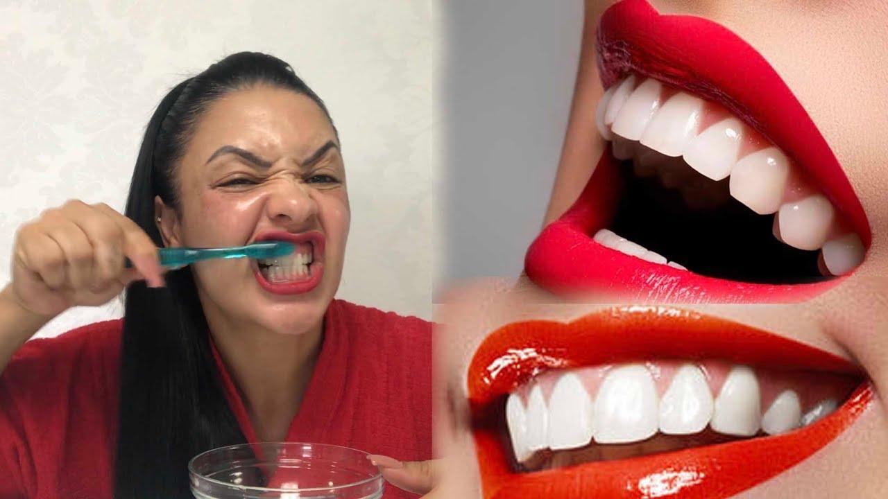 Como Clareei Os Dentes Na Hora Eliminei Tartaros E Gengivite Em 2