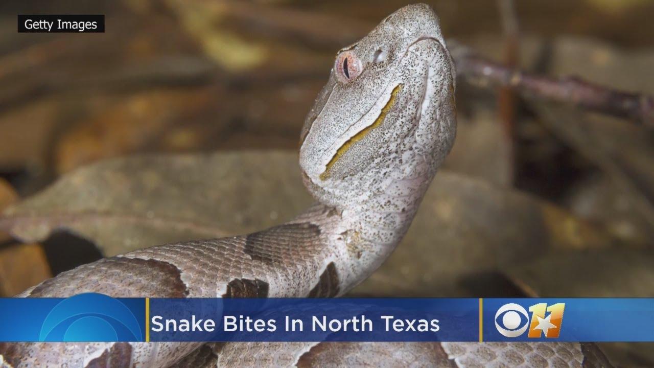 North Texas Recording More Snake Bites As Temperatures Soar