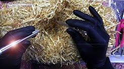 They Did Surgery On A Haystack