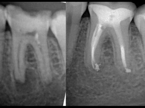 Киста зуба — лечение в домашних условиях, народные методы