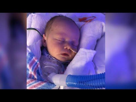 Vocal cord surgery gives toddler a voice