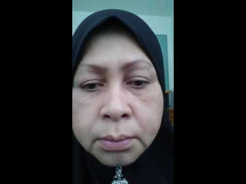 Testimoni alrazi botox cream 3