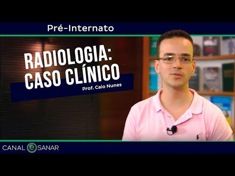 i-workshop---aula-2:-casos-clínicos-em-radiologia-de-tórax