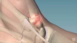 Mayo Clinic Minute: Cause, remedies for thumb arthritis