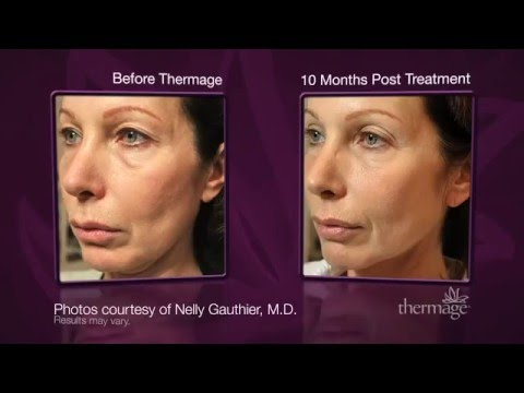 Thermage: Skin Tightening