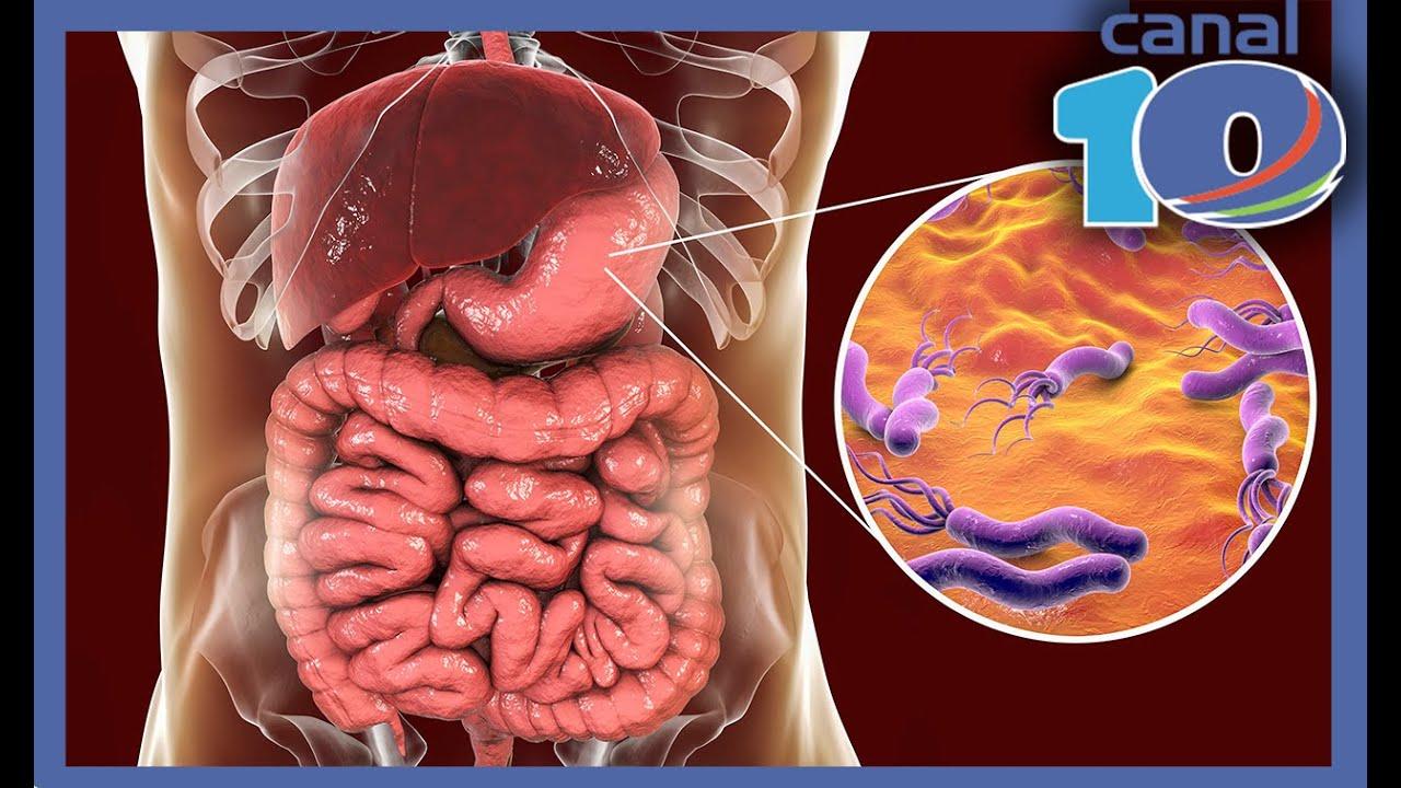 que causan las bacterias en el estomago