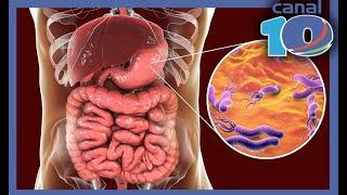 La graves consecuencias de la bacteria Helicobacter Pylori