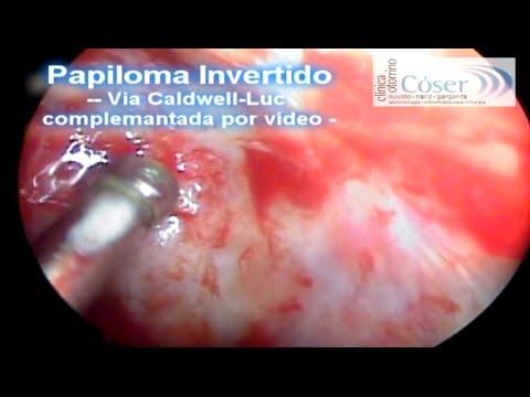 Papiloma Invertido-Caldwell-Luc complemento por vídeo/Inverted Papilloma Caldwell-Luc complement