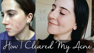 How I Cleared My Acne // Julia Giaimo