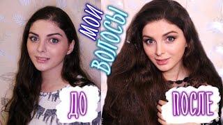 видео Биоксин: выпадение волос больше не проблема
