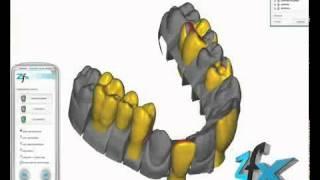 Анатомия улыбки: CAD CAM моделирование протезирование лечение зубов(Клиника эстетической стоматологии European Clinic of Aesthetic Dentistry http://dentalclinica.ru и имплантации в Будапеште Специализа..., 2014-04-09T10:49:53.000Z)