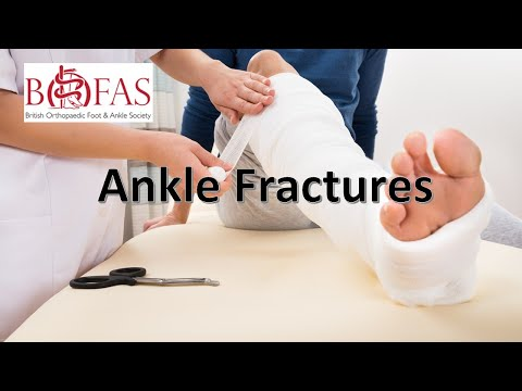 Principles Of Ankle Fractures