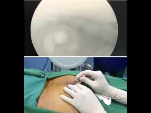 Pengobatan syaraf kejepit tanpa operasi.