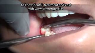 Lower wisdom tooth with gum infection extraction-VIDEO
