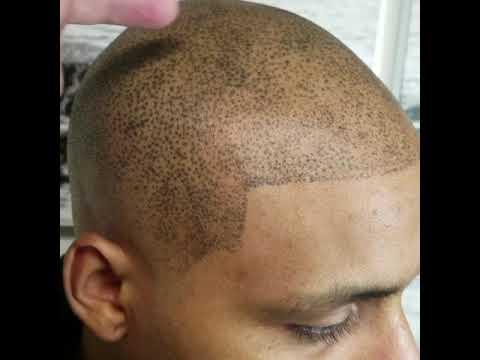 Worlds worst Scalp Micropigmentation job