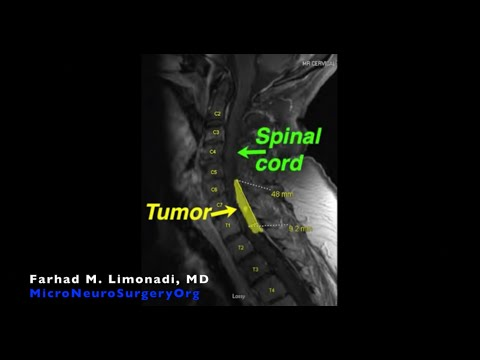 Removal of spinal cord tumor (meningioma): Spine Tumor Surgery