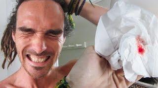 ALS ICE BUCKET FAIL
