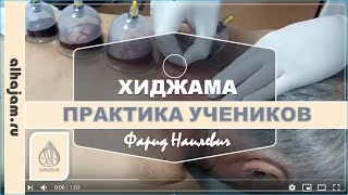 Семинар по хиджаме в Казани
