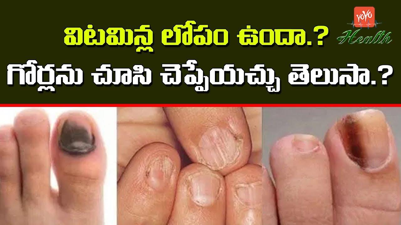 Vertical Ridges In Nails Vitamin Deficiency