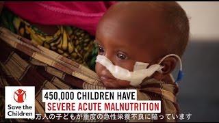 東アフリカ干ばつ:45万人の子どもたちが重度の急性栄養不良に陥る