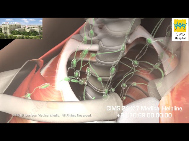 Breast Anatomy (Gujarati) - CIMS Hospital