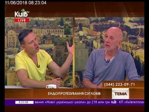 Телеканал Київ: 11.06.18 Громадська приймальня 08.15