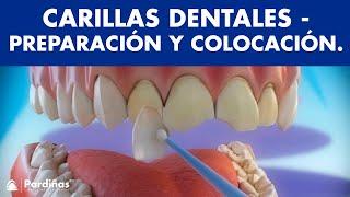 Carillas dentales - Preparación y colocación de carillas ©