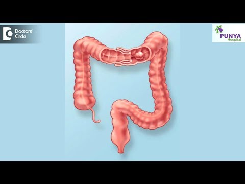 What is the treatment for Intussusception? - Dr. Nagaraj B. Puttaswamy