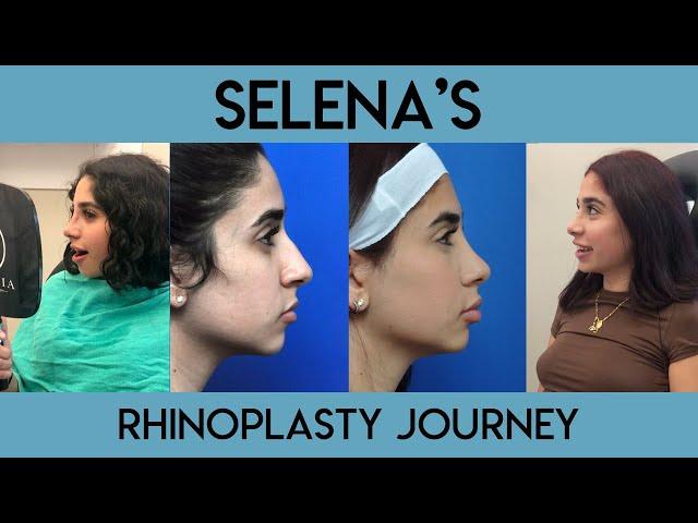 Selena's Rhinoplasty Journey