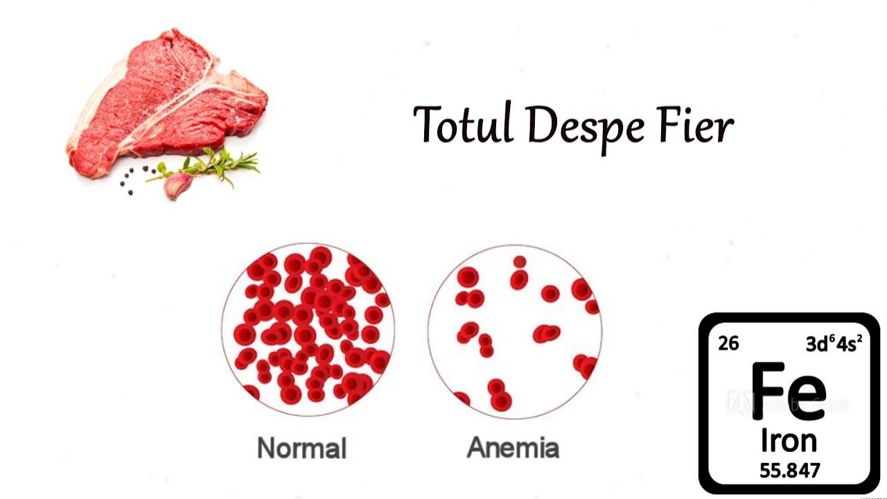 Lipsa de fier poate ascunde tumori maligne, hemoragii sau ulcer