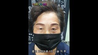 반영구화장 콤보 자연눈썹 문신 시술전후-군산,전북,전주…